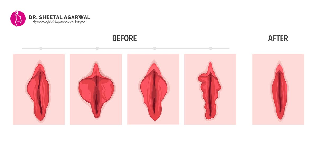 vaginal- rejuvenation- treatments-Dr- Shetal-Agarwal