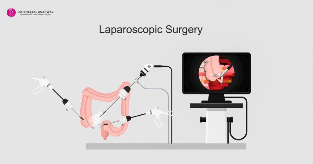 laparoscopy-surgeon-surgeon